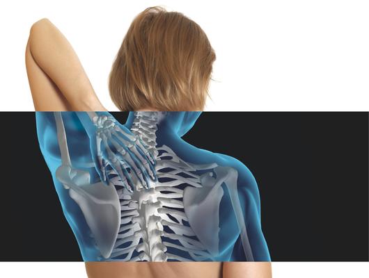 img-356949-osteoporose-ummalsilencioso